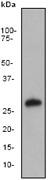 NB110-55465 - Apolipoprotein A I (APO AI)