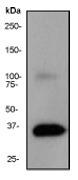 NB110-55467 - Apolipoprotein E / Apo E