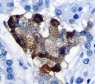 NB110-55721 - Chromogranin A