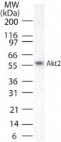 NB100-56362 - AKT2 / PKB beta