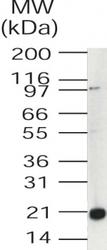 NB100-56397 - UBE2V1 / CROC1
