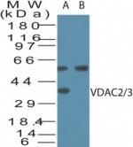 NB100-56463 - VDAC-2 + VDAC-3