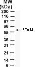 NB100-56533 - STAM1
