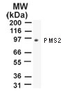 NB100-56554 - PMS2
