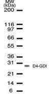 NB100-56556 - ARHGDIB / D4-GDI