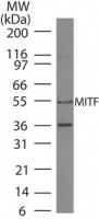 NB100-56561 - MITF