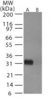 NB100-56607 - Influenza A H5N1