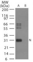NB100-56611 - Influenza A H5N1