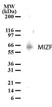 NB100-56628 - MIZF
