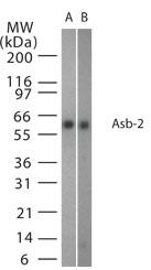NB100-56638 - ASB2