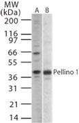 NB100-56672 - PELI1