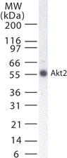 NB100-56676 - AKT2 / PKB beta