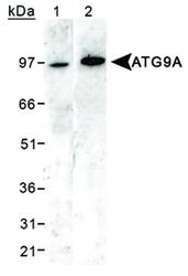 NB110-56893 - APG9L1 / ATG9A