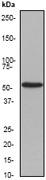 NB110-56915 - Cytokeratin 4