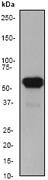 NB110-56916 - Cytokeratin 5