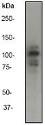 NB110-56937 - CD324 / Cadherin-1