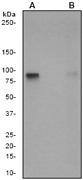 NB110-57011 - Glycogen Synthase