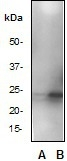NB110-57061 - HSPB1 / HSP27