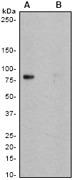 NB110-57163 - CD18 / ITGB2