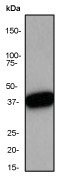 NB110-57274 - Nucleophosmin