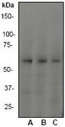 NB110-57313 - Tumor protein p73 (TP73)