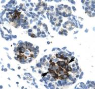 NB110-57379 - DNA ligase 4