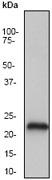 NB110-57435 - Presenilin-2