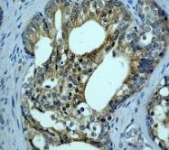 NB110-57447 - B-Raf proto-oncogene