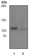 NB110-57460 - Retinoblastoma-associated protein / RB1