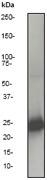 NB110-57481 - Serum amyloid P-component