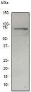 NB110-57650 - Vitronectin