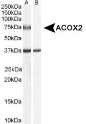 NB100-57853 - ACOX2