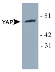 NB110-58358 - YAP1