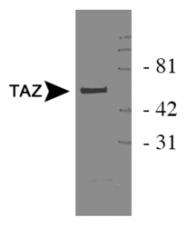NB110-58359 - Tafazzin (TAZ)