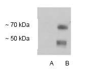 NB110-58775 - SLC1A2 / EAAT2