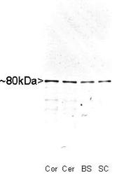 NB110-58875 - MARCKS