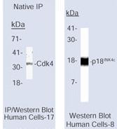 NB120-3216 - CDKN2C / p18INK4c