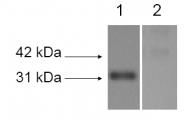 NB110-59729 - Lysyl oxidase