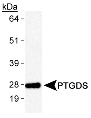 NB110-59909 - PTGDS