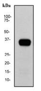 NB110-59960 - Kallikrein-3 / PSA / KLK3