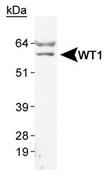NB110-60011 - WT1 / Wilms tumor protein