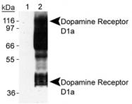 NB110-60017 - Dopamine D1 receptor