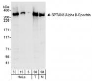 NB100-60441 - Spectrin alpha chain (brain) / SPTAN1