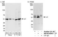 NB100-60451 - Integrin-linked protein kinase