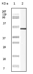 NB110-60529 - Vimentin