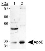 NB110-60531 - Apolipoprotein E / Apo E