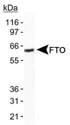 NB110-60935 - FTO