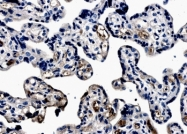 NB110-60997 - Erythropoietin receptor