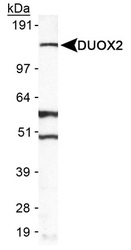 NB110-61576 - Dual oxidase 2