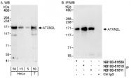 NB100-61609 - Ataxin-2-like protein